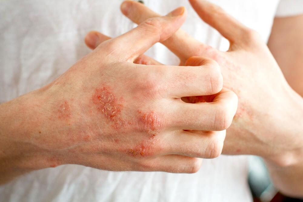 Hands with eczema flareup, scratching